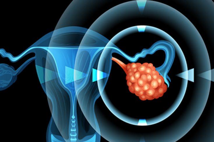 Cuarenta años de investigación del profesor Hernán Lara por entender el por qué de los ovarios poliquísticos tuvieron un fruto: una patente para elaborar un fármaco no tradicional que regula la función nerviosa que los afecta. Se trata de un electrofármaco que podría estar disponible para el uso humano dentro de los próximos años.
